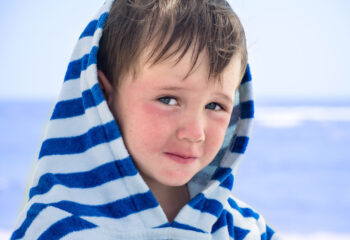 A little boy in a striped bathrobe at the seashore with atopic dermatitis looks slyly and smiles